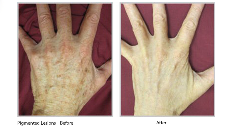 Pigmented Lesions Before and After