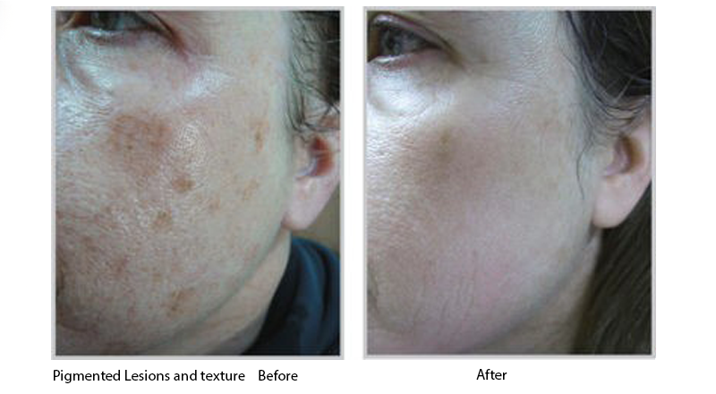 Pigmented Lesions and Texture Before and After