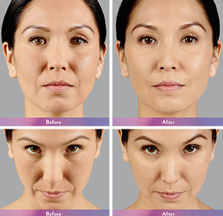 JUVÉDERM® Collection - Top Best Medical Surgical Cosmetic